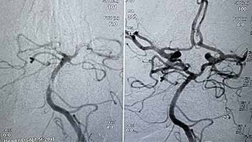 Third stroke patient treated with Cyclical Aspiration