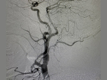 Persistent hypoglossal artery
