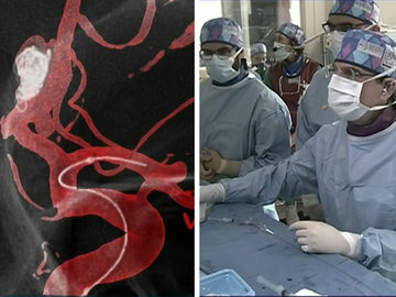 Live Case: Treating a recurrence of an Acom aneurysm using flow diversion