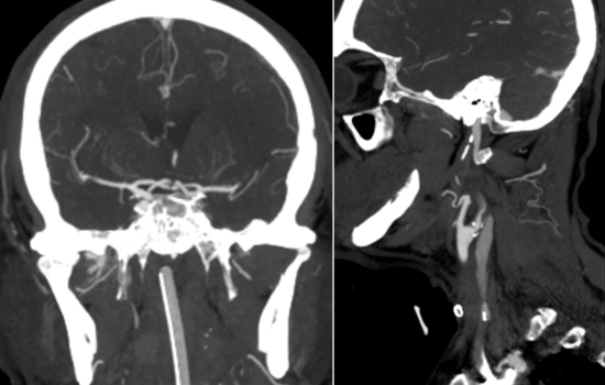 CTA showed intracranial M2 occlusion