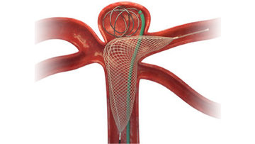 Cascade is unique in that it offers denser aneurysm neck coverage